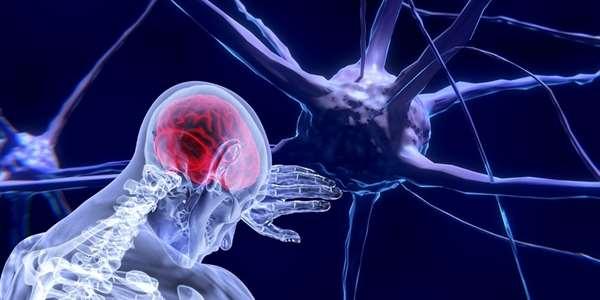 Zabalené neurony slibují léčbu epilepsie nebo roztroušené sklerózy | Foto: Pixabay