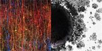Lidský mozek dokáže vytvářet až jedenáctirozměrné struktury