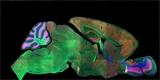 Elixír mládí vrací ztracenou paměť stárnoucím mozkům myší. Mohla by to být šance pro léčbu Alzheimerovy choroby