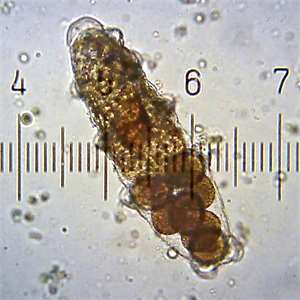 "<span class=""source"">Foto: <a style=""color:#fff"" href=""https://commons.wikimedia.org/wiki/File:TardigradeEggsInShedCuticle.jpg""> Bob Blaylock</a>, <a style=""color:#fff"" href=""https://creativecommons.org/licenses/by-sa/4.0/deed.cs"">CC BY-SA 4.0 </a></span>"